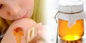 تاثیر عسل طبیعی بر زخم و سوختگی